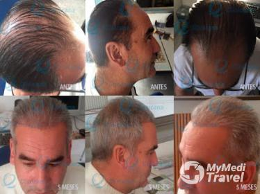 Clinicana Hair Transplant and Esthetic Center in Istanbul, Turkey