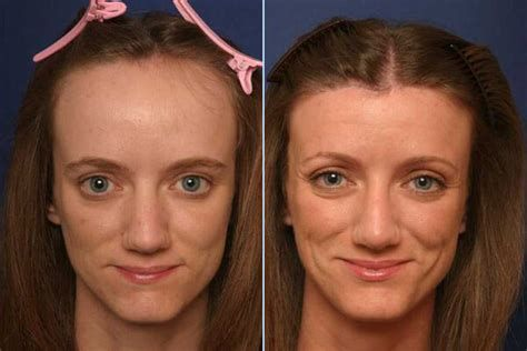 10 Best Clinics For Hairline Lowering Surgery In South Africa