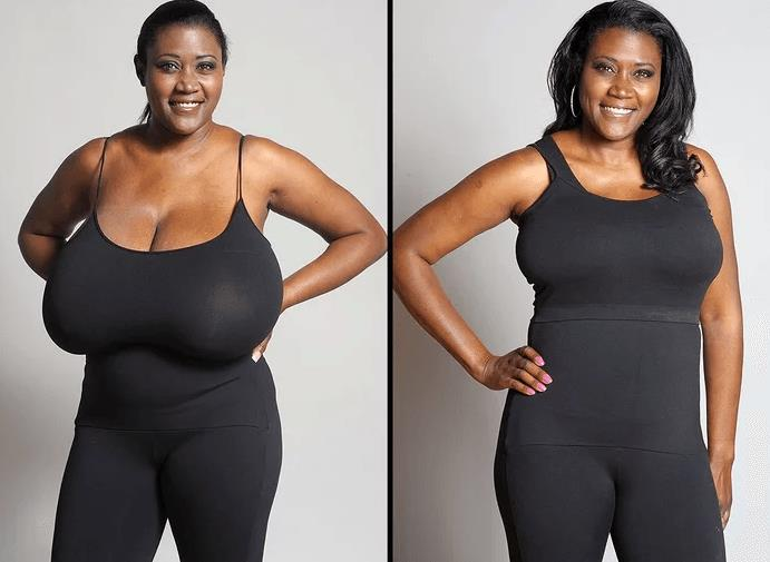 10 Best Clinics For Breast Reduction In Mexico 2020 Prices