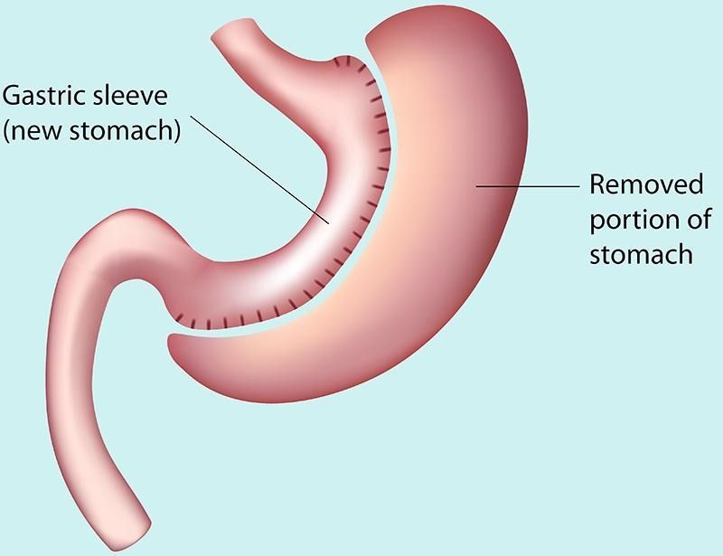 Gastric Sleeve Diagram