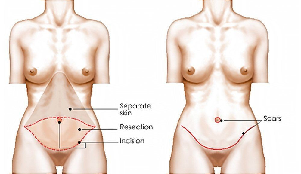 Tummy Tuck Diagram