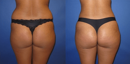 Before and After Butt Lift