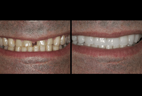 Veneers, Before and After