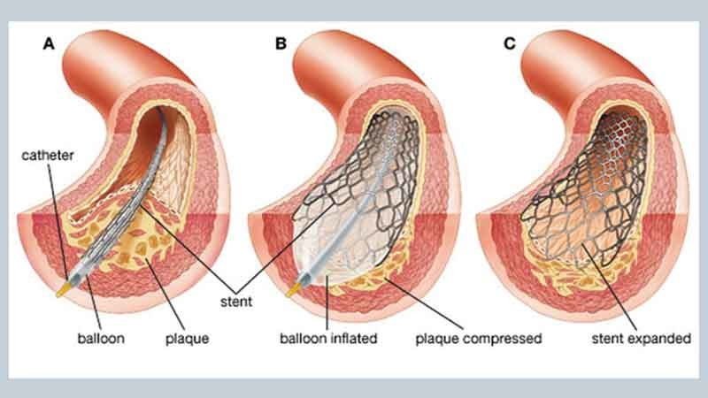 Placing of the Stent