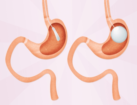 Pros and Cons of a Gastric Balloon