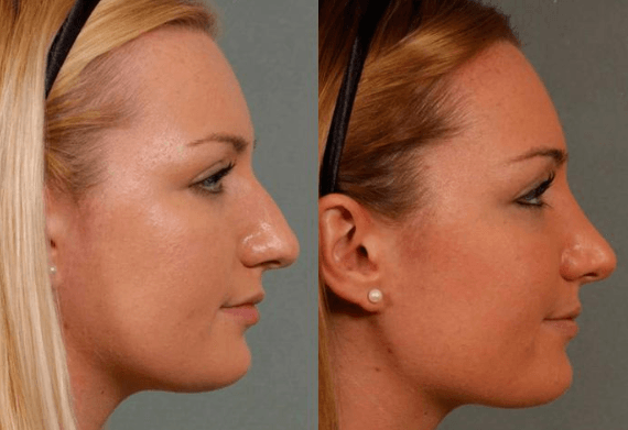 10 Best Clinics for Rhinoplasty in Dominican Republic (w/Prices)